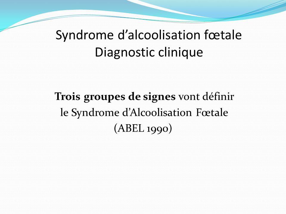Syndrome d'alcoolisation fœtale Diagnostic clinique Trois groupes de signes vont définir le Syndrome d'Alcoolisation Fœtale (ABEL 1990)