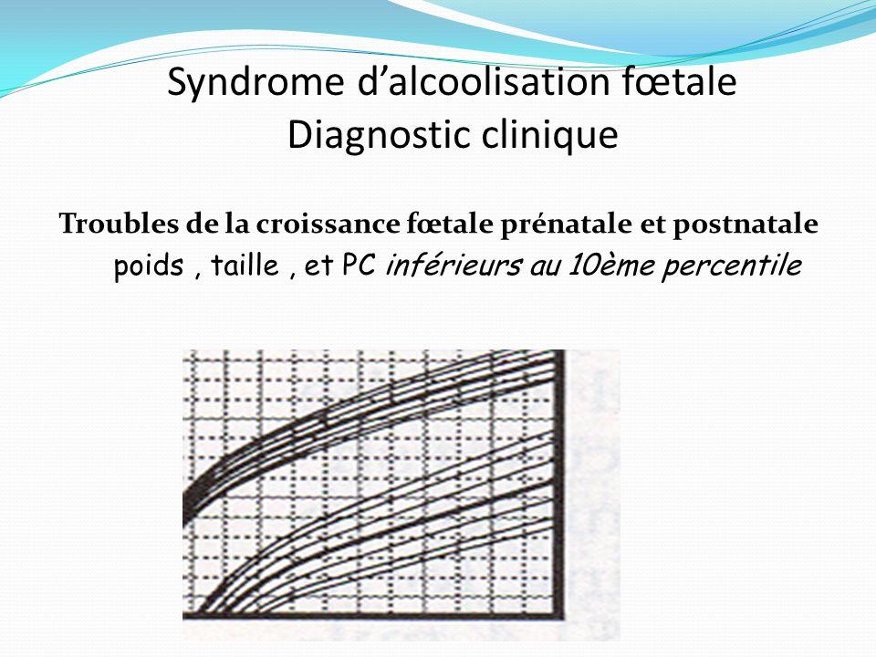 Syndrome d'alcoolisation fœtale Diagnostic clinique Troubles de la croissance fœtale prénatale et postnatale poids, taille, et PC inférieurs au 10ème