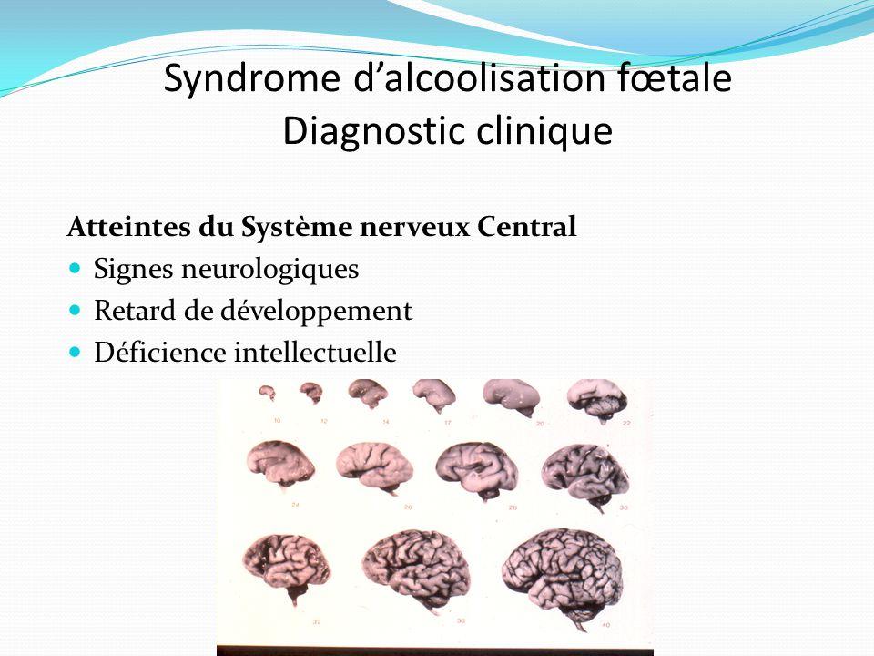 Syndrome d'alcoolisation fœtale Diagnostic clinique Atteintes du Système nerveux Central Signes neurologiques Retard de développement Déficience intel