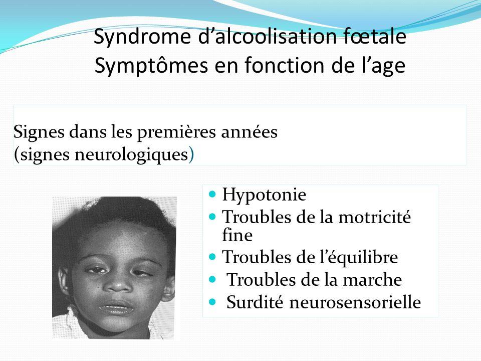 Syndrome d'alcoolisation fœtale Symptômes en fonction de l'age Signes dans les premières années (signes neurologiques) Hypotonie Troubles de la motric