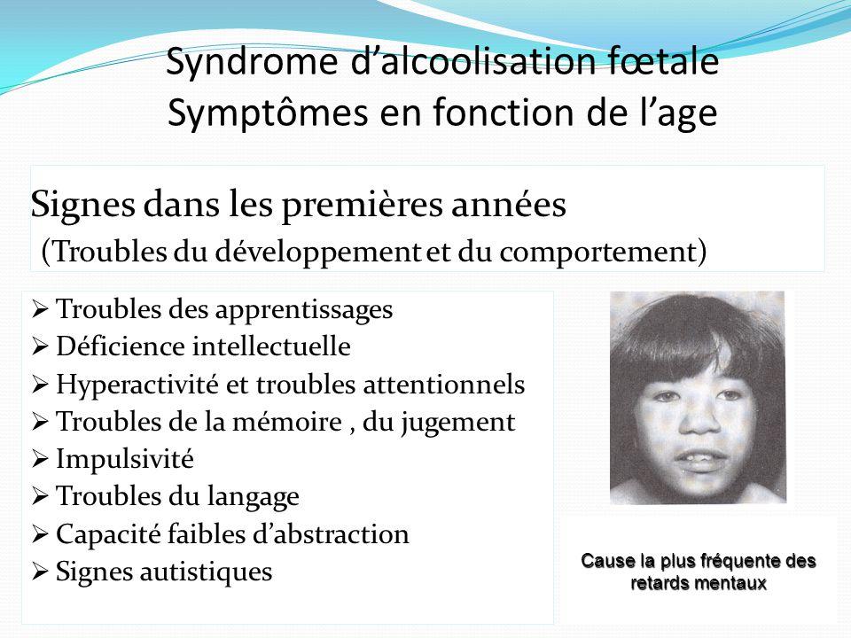 Syndrome d'alcoolisation fœtale Symptômes en fonction de l'age Signes dans les premières années (Troubles du développement et du comportement)  Troub