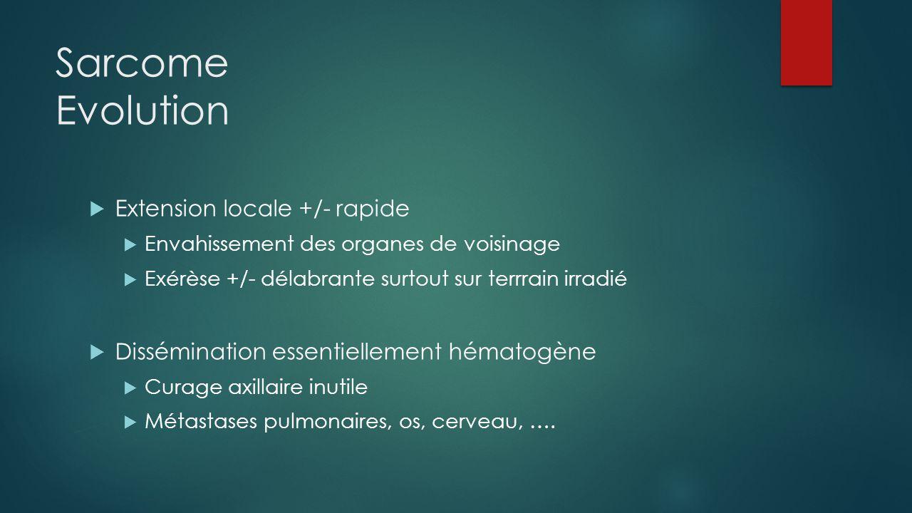 Sarcome Evolution  Extension locale +/- rapide  Envahissement des organes de voisinage  Exérèse +/- délabrante surtout sur terrrain irradié  Dissé