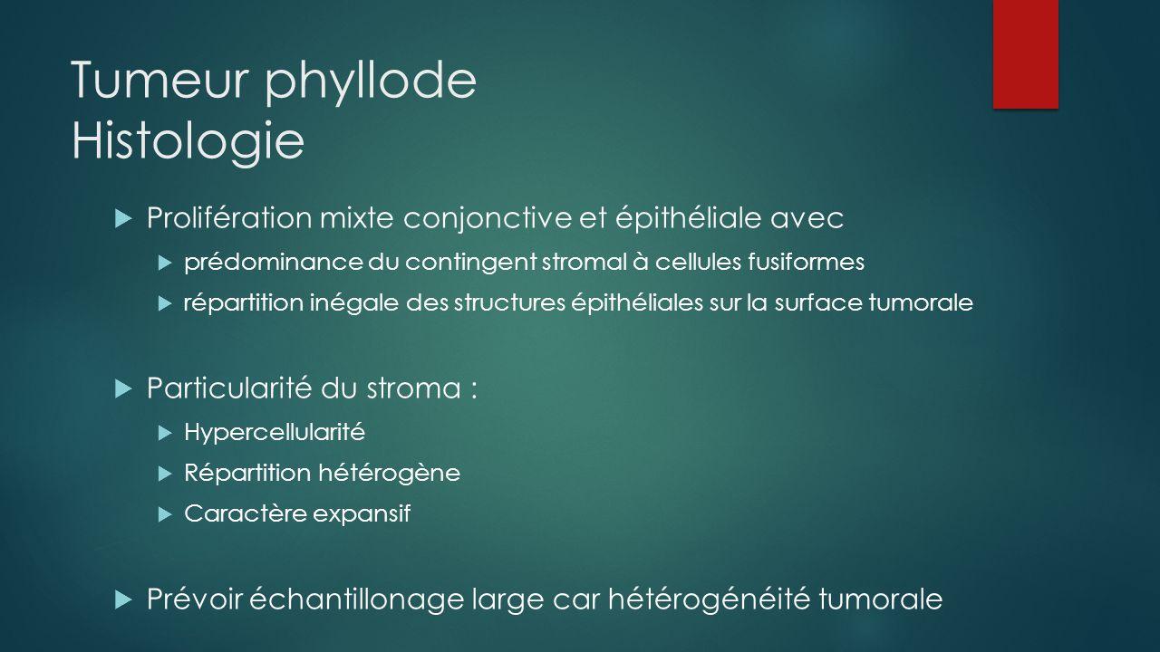 Tumeur phyllode Histologie  Prolifération mixte conjonctive et épithéliale avec  prédominance du contingent stromal à cellules fusiformes  répartit