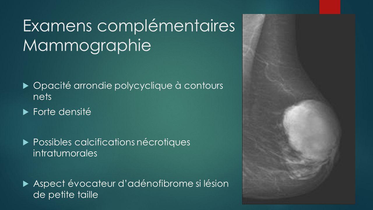 Examens complémentaires Mammographie  Opacité arrondie polycyclique à contours nets  Forte densité  Possibles calcifications nécrotiques intratumor