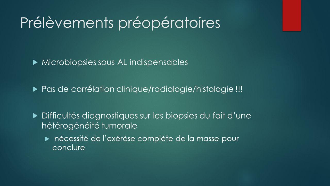 Prélèvements préopératoires  Microbiopsies sous AL indispensables  Pas de corrélation clinique/radiologie/histologie !!!  Difficultés diagnostiques