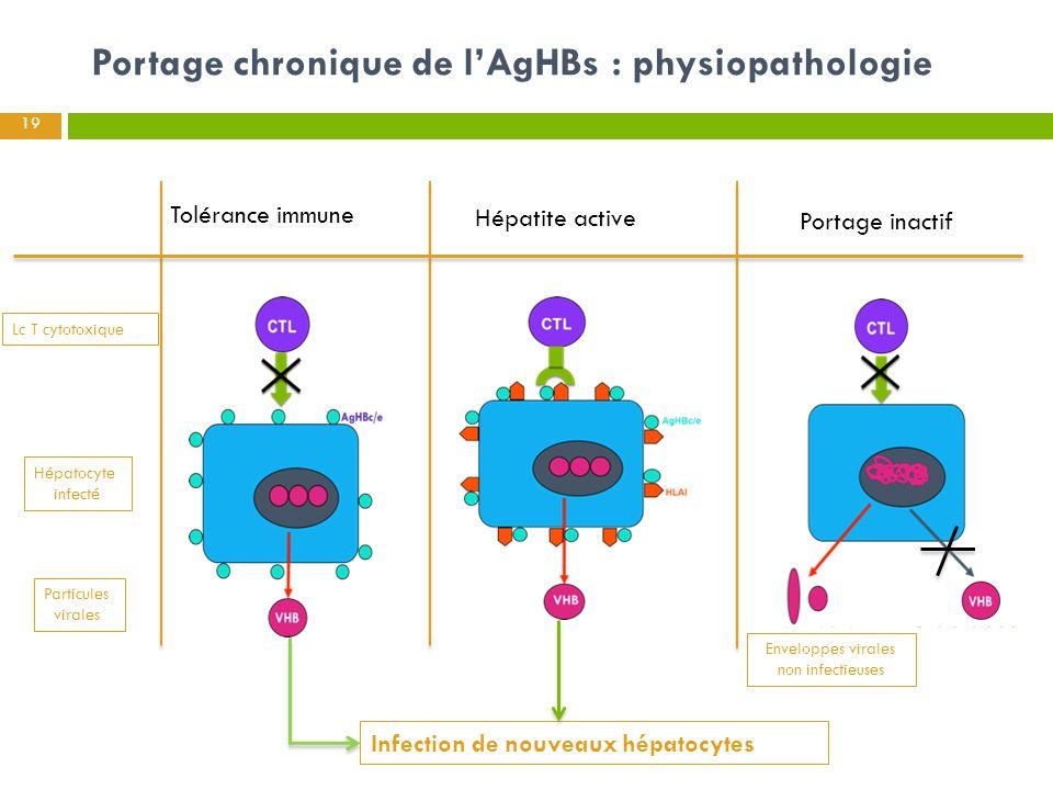 Portage chronique de l'AgHBs : physiopathologie 19 Hépatocyte infecté Lc T cytotoxique Particules virales Enveloppes virales non infectieuses Infectio