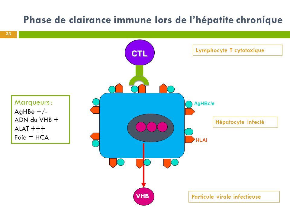 Phase de clairance immune lors de l'hépatite chronique 33 Hépatocyte infecté Marqueurs : AgHBe +/- ADN du VHB + ALAT +++ Foie = HCA AgHBc/e HLAI VHB L
