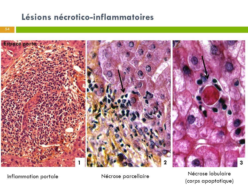 Lésions nécrotico-inflammatoires Inflammation portale Nécrose parcellaire Nécrose lobulaire (corps apoptotique) Espace porte 1 2 3 54