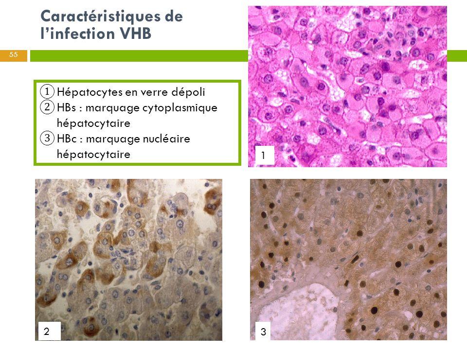 ① Hépatocytes en verre dépoli ② HBs : marquage cytoplasmique hépatocytaire ③ HBc : marquage nucléaire hépatocytaire Caractéristiques de l'infection VH