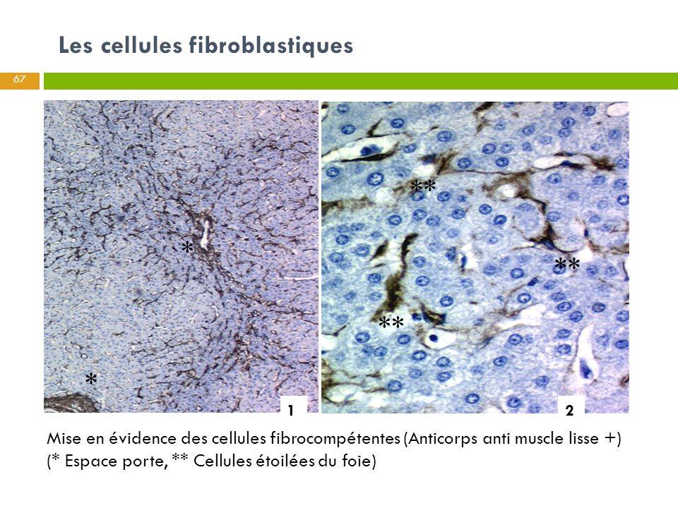 Les cellules fibroblastiques Mise en évidence des cellules fibrocompétentes (Anticorps anti muscle lisse +) (* Espace porte, ** Cellules étoilées du f