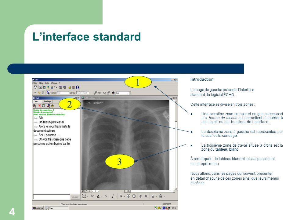 4 L'interface standard Introduction L'image de gauche présente l'interface standard du logiciel ÉCHO.