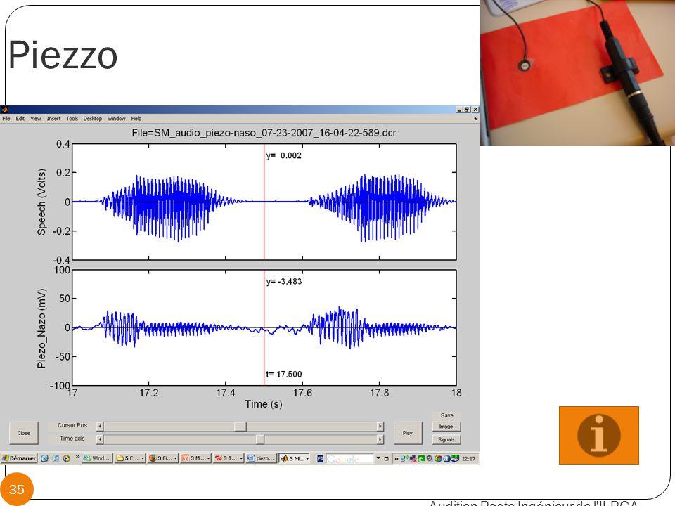 Piezzo Audition Poste Ingénieur de l ILPGA 35