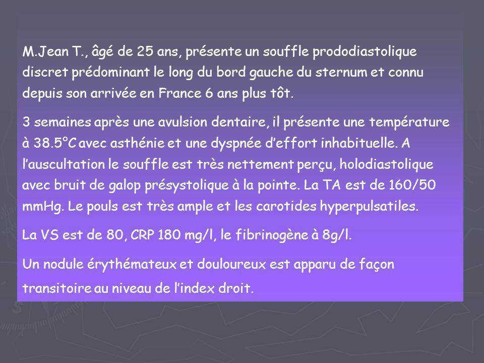 M.Jean T., âgé de 25 ans, présente un souffle prododiastolique discret prédominant le long du bord gauche du sternum et connu depuis son arrivée en Fr
