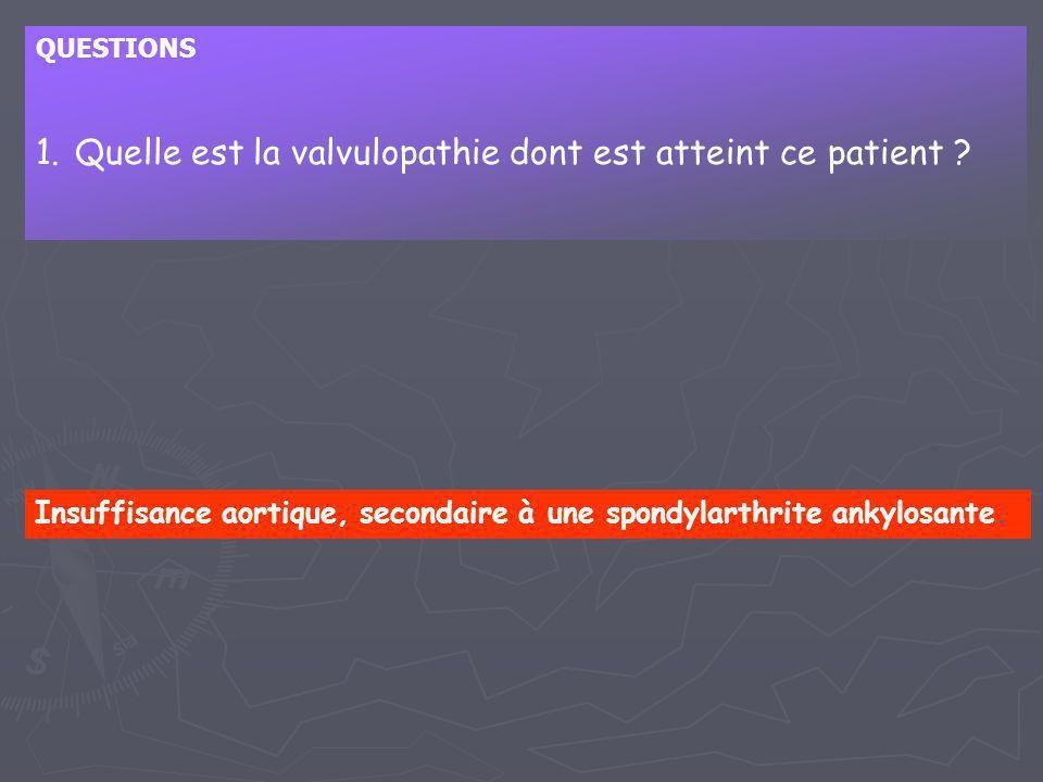 QUESTIONS 1.Quelle est la valvulopathie dont est atteint ce patient ? Insuffisance aortique, secondaire à une spondylarthrite ankylosante.