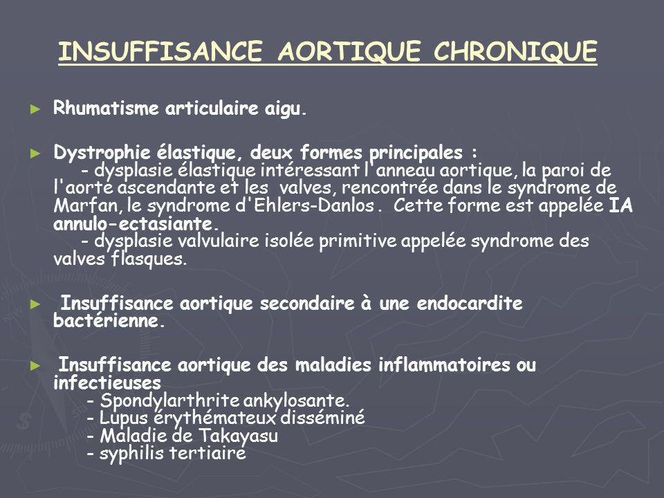 INSUFFISANCE AORTIQUE CHRONIQUE ► ► Rhumatisme articulaire aigu. ► ► Dystrophie élastique, deux formes principales : - dysplasie élastique intéressant