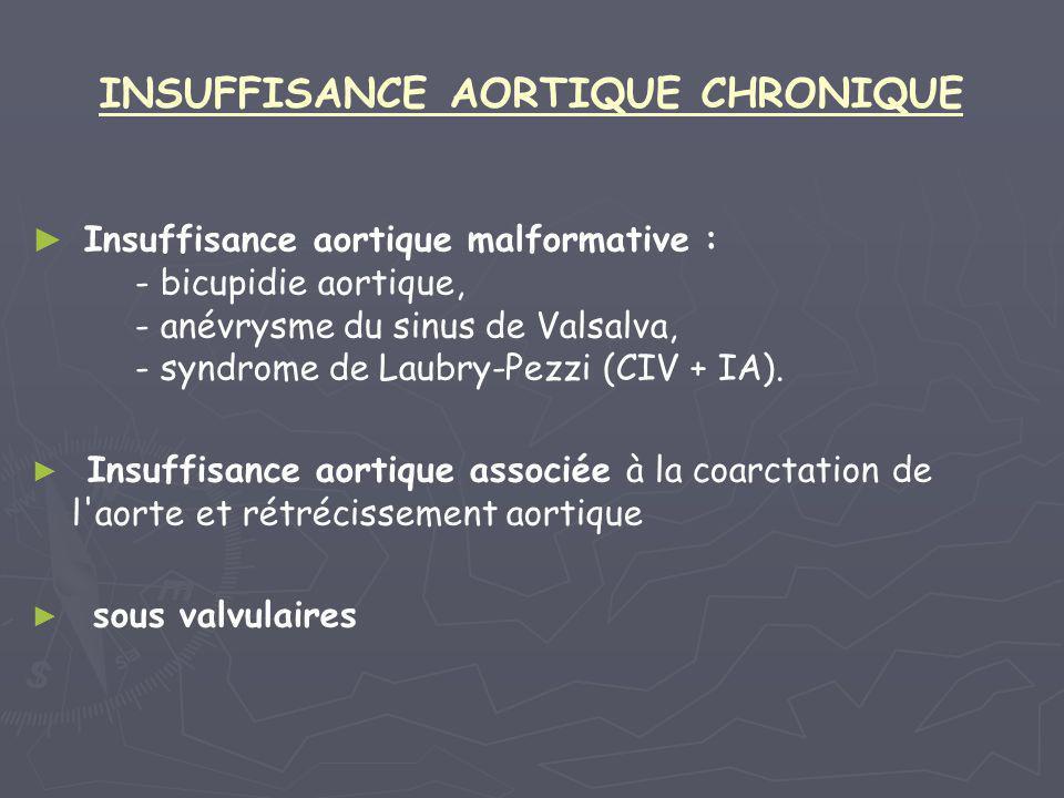 INSUFFISANCE AORTIQUE CHRONIQUE ► ► Insuffisance aortique malformative : - bicupidie aortique, - anévrysme du sinus de Valsalva, - syndrome de Laubry-