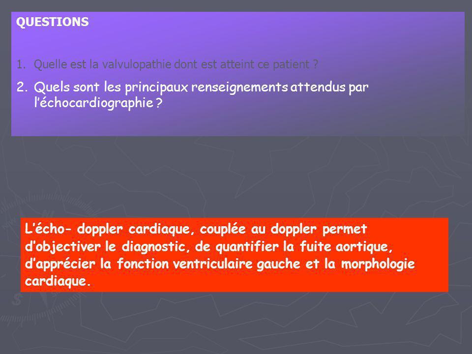 QUESTIONS 1.Quelle est la valvulopathie dont est atteint ce patient ? 2.Quels sont les principaux renseignements attendus par l'échocardiographie ? L'