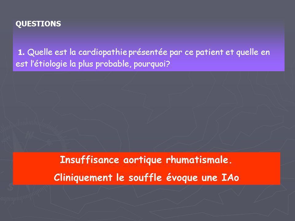 QUESTIONS 1. Quelle est la cardiopathie présentée par ce patient et quelle en est l'étiologie la plus probable, pourquoi? Insuffisance aortique rhumat