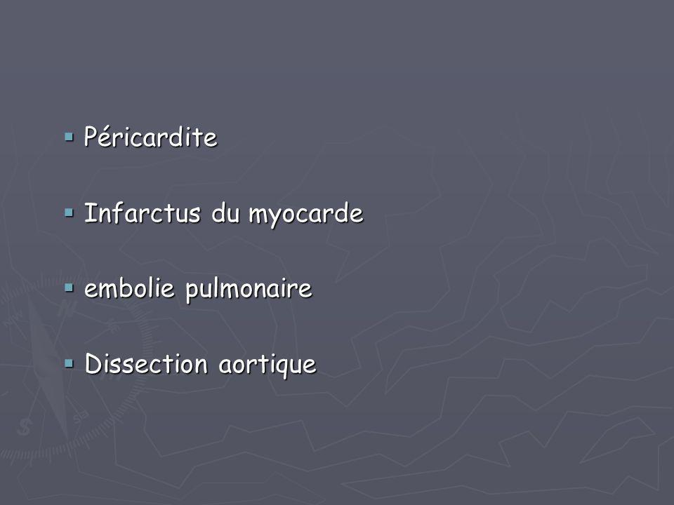  Péricardite  Infarctus du myocarde  embolie pulmonaire  Dissection aortique