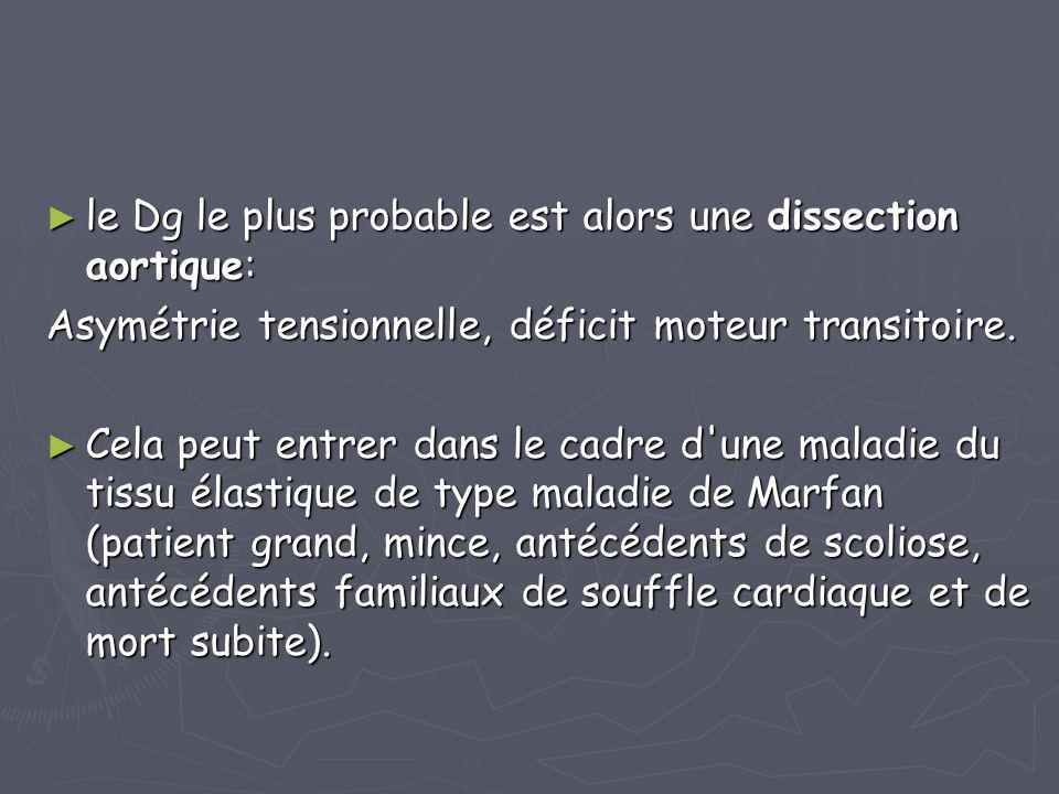► le Dg le plus probable est alors une dissection aortique: Asymétrie tensionnelle, déficit moteur transitoire. ► Cela peut entrer dans le cadre d'une