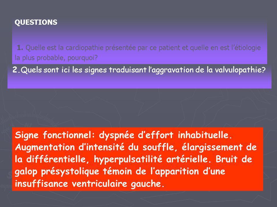 QUESTIONS 1.Quelle est la valvulopathie dont est atteint ce patient .