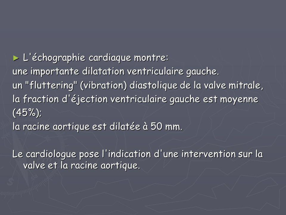 ► L'échographie cardiaque montre: une importante dilatation ventriculaire gauche. un