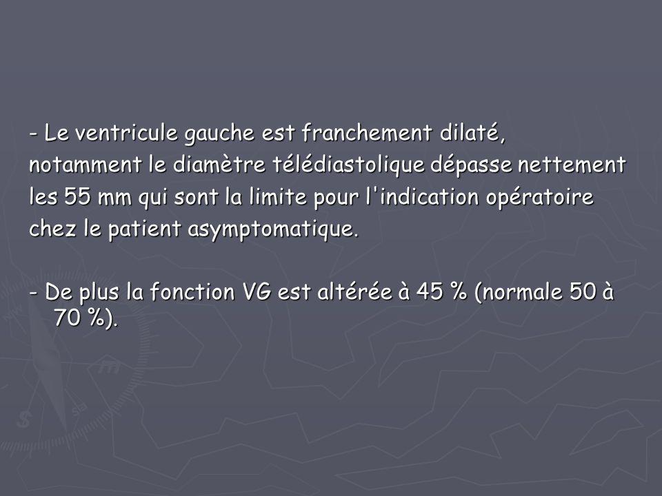 - Le ventricule gauche est franchement dilaté, notamment le diamètre télédiastolique dépasse nettement les 55 mm qui sont la limite pour l'indication