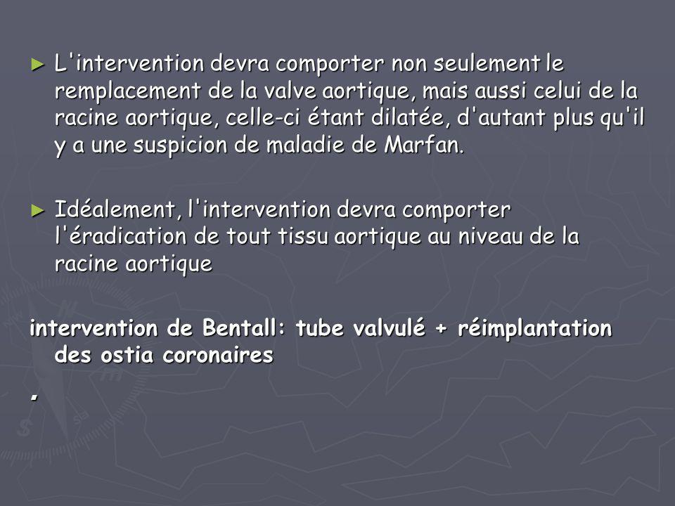► L'intervention devra comporter non seulement le remplacement de la valve aortique, mais aussi celui de la racine aortique, celle-ci étant dilatée, d