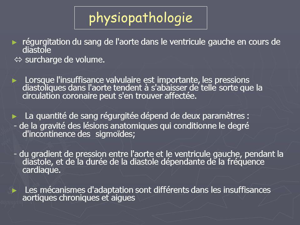 Insuffisance aortique chronique ► ► Adaptation = dilatation VG avec augmentation du volume télédiastolique.