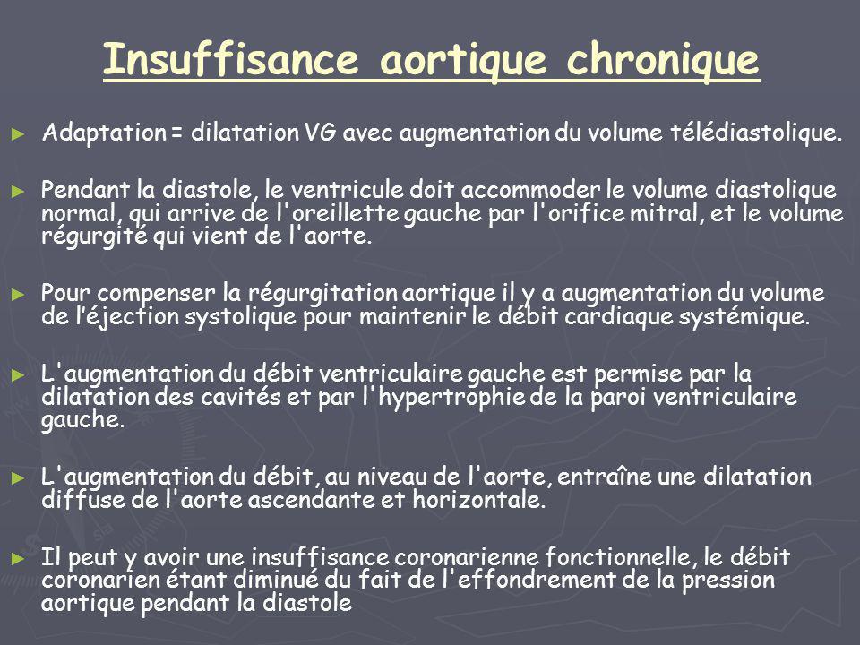 Insuffisance aortique aiguë ► ► Le ventricule gauche n a pas le temps de s adapter aux nouvelles conditions hémodynamiques en dilatant sa cavité et en augmentant sa compliance.