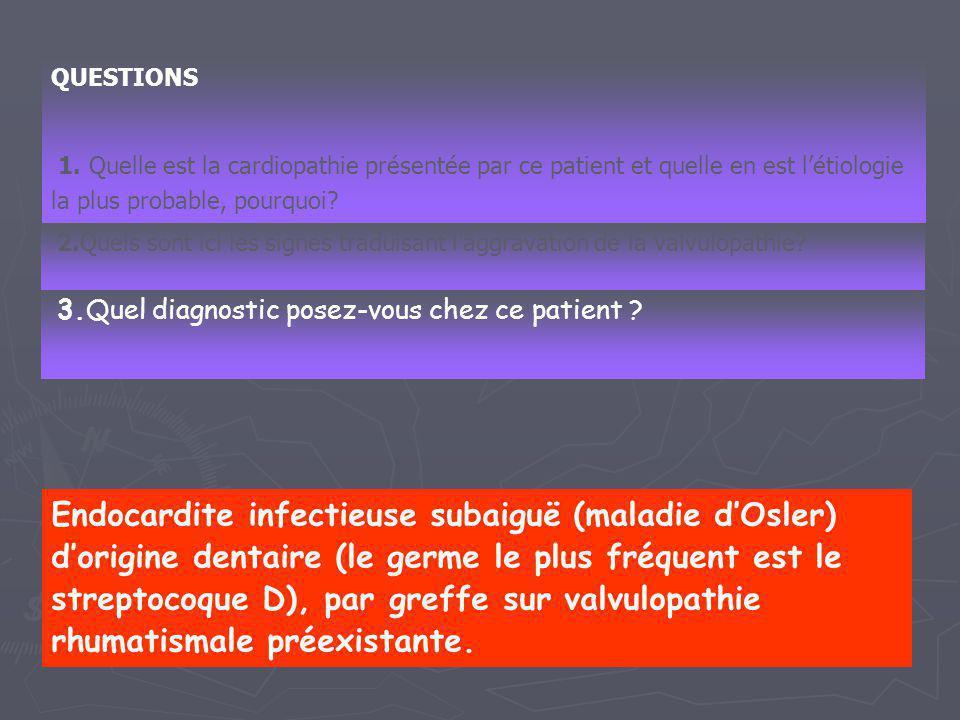 QUESTIONS 1. Quelle est la cardiopathie présentée par ce patient et quelle en est l'étiologie la plus probable, pourquoi? 2.Quels sont ici les signes