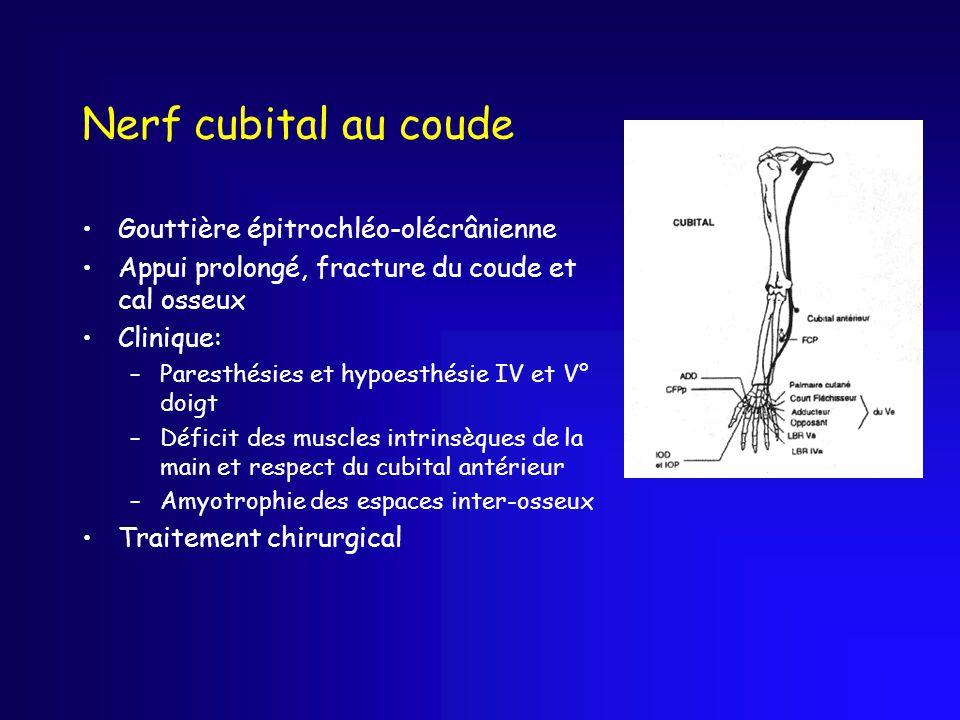 Nerf cubital au coude Gouttière épitrochléo-olécrânienne Appui prolongé, fracture du coude et cal osseux Clinique: –Paresthésies et hypoesthésie IV et