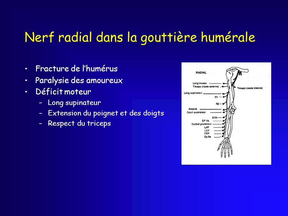 Nerf radial dans la gouttière humérale Fracture de l'humérus Paralysie des amoureux Déficit moteur –Long supinateur –Extension du poignet et des doigt