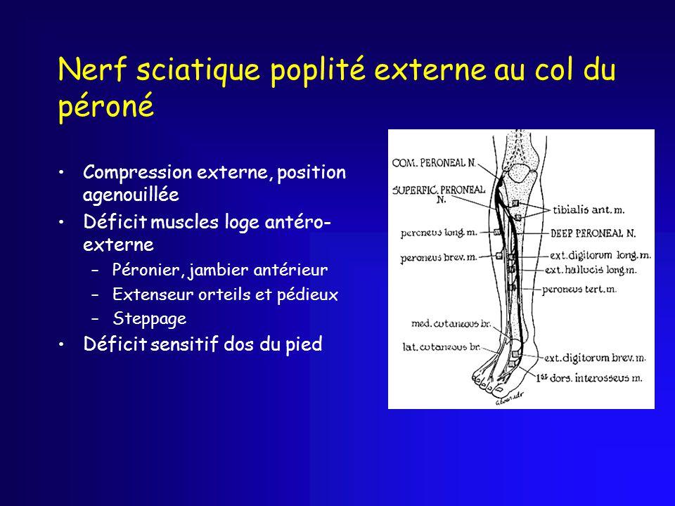 Nerf sciatique poplité externe au col du péroné Compression externe, position agenouillée Déficit muscles loge antéro- externe –Péronier, jambier anté