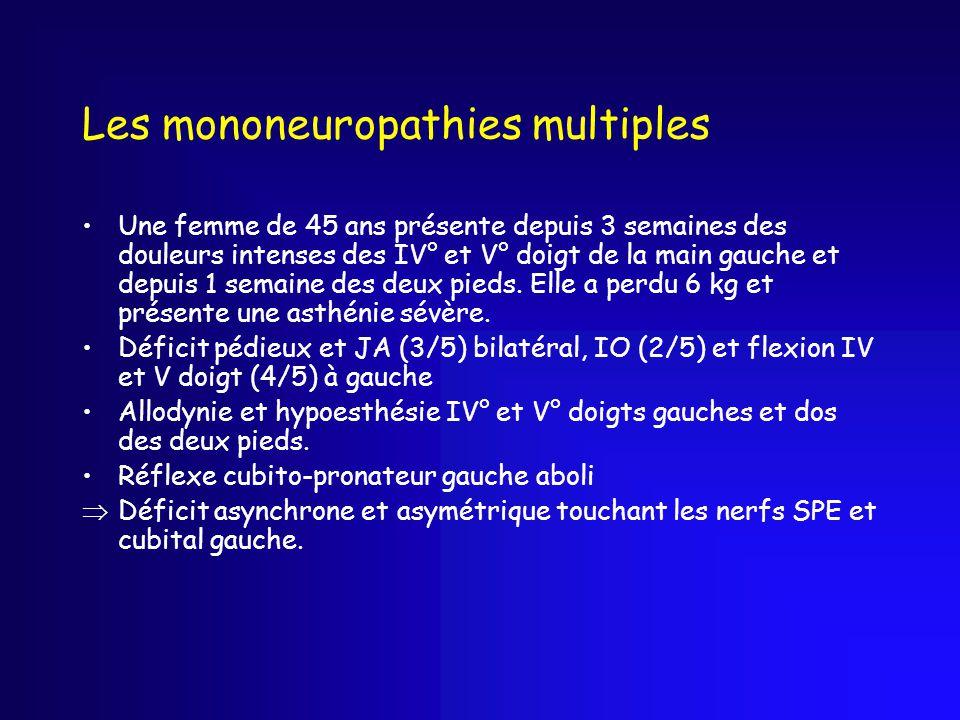 Les mononeuropathies multiples Une femme de 45 ans présente depuis 3 semaines des douleurs intenses des IV° et V° doigt de la main gauche et depuis 1