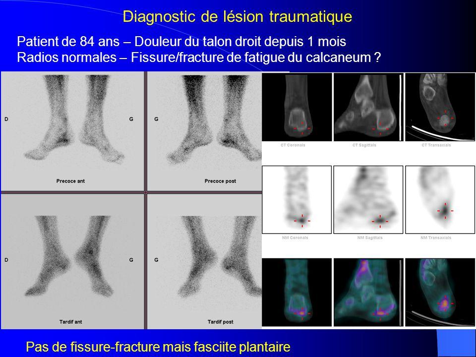 Patient de 20 ans – Course à pieds +++ - Douleurs des jambes depuis 6 sem Radios normales – Fissures .