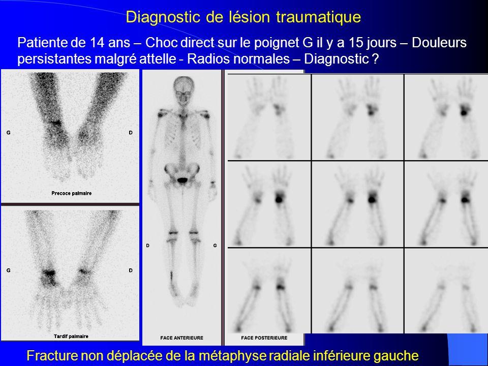 Pt de 42 ans – Entorse externe de la cheville droite récente – Cheville gonflée Radios normales – Fracture passée inaperçue .