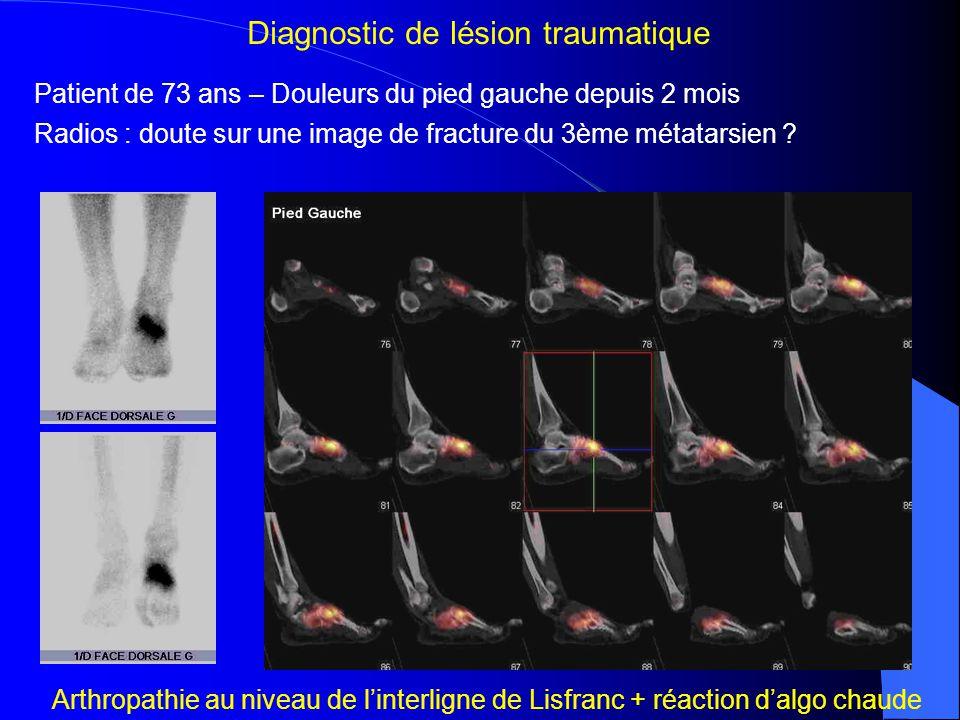 Sportif de 20 ans – Douleurs de la racine de cuisse droite depuis 2 mois Radios normales – Suspicion de fissure de fatigue Diagnostic de lésion traumatique