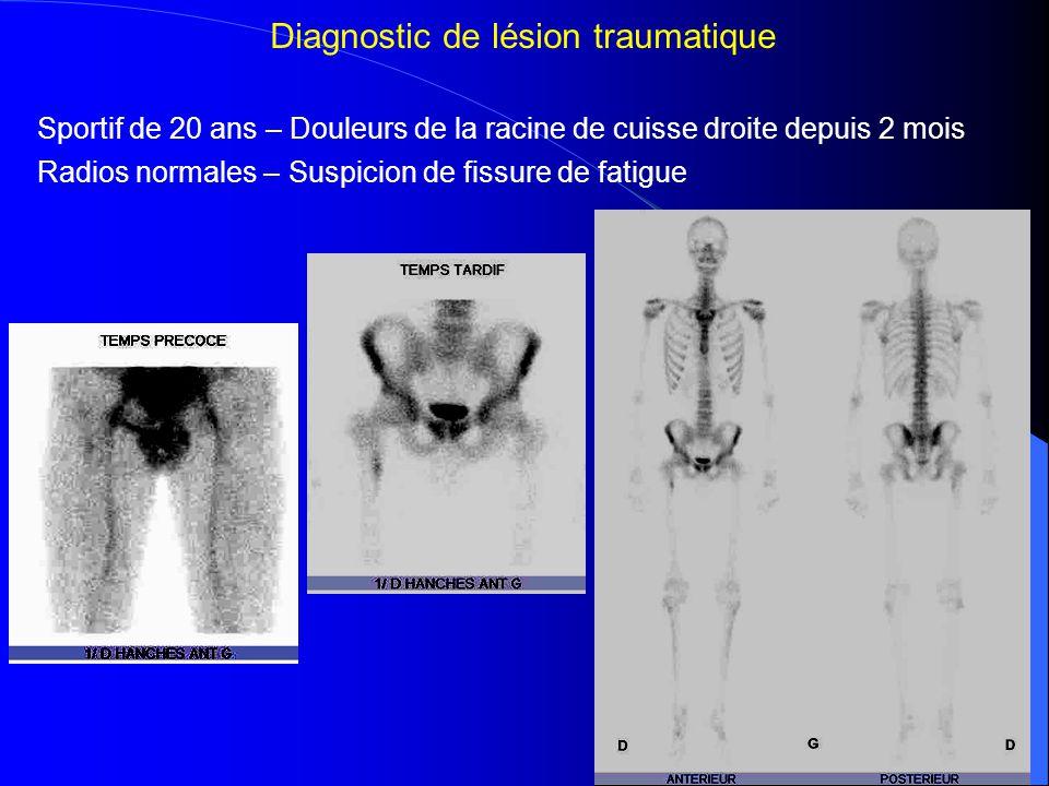 => Ostéome ostéoïde