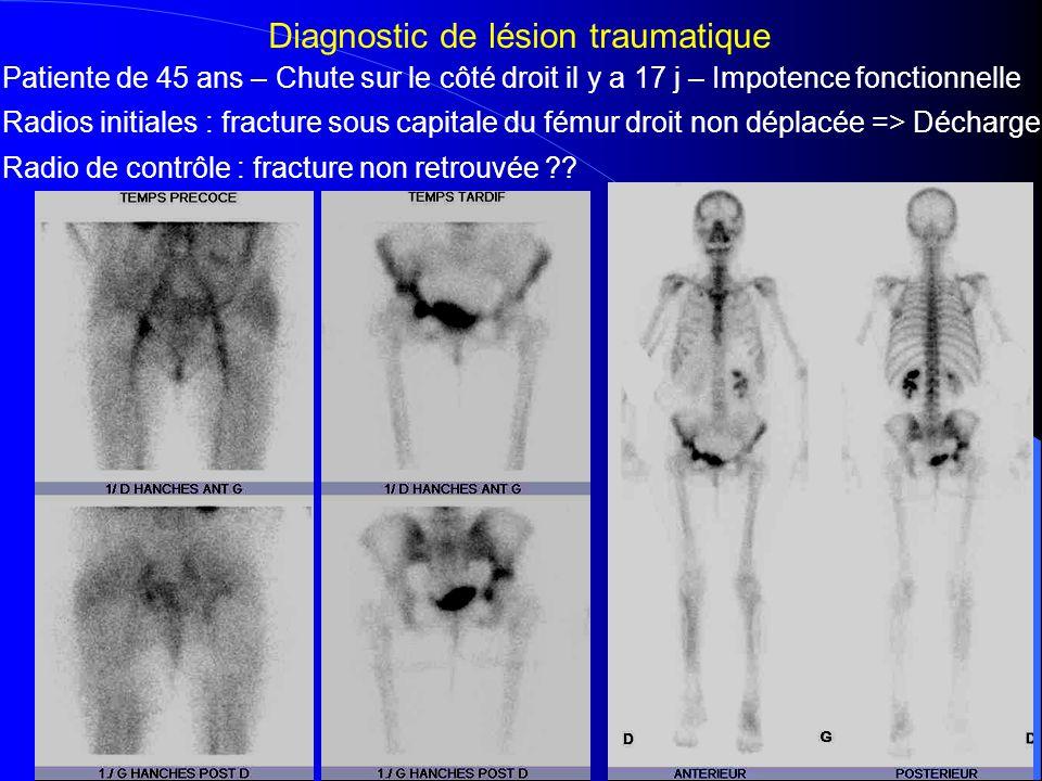 Fracture du cotyle et de l'aile iliaque droite – Pas de fracture du col fémoral