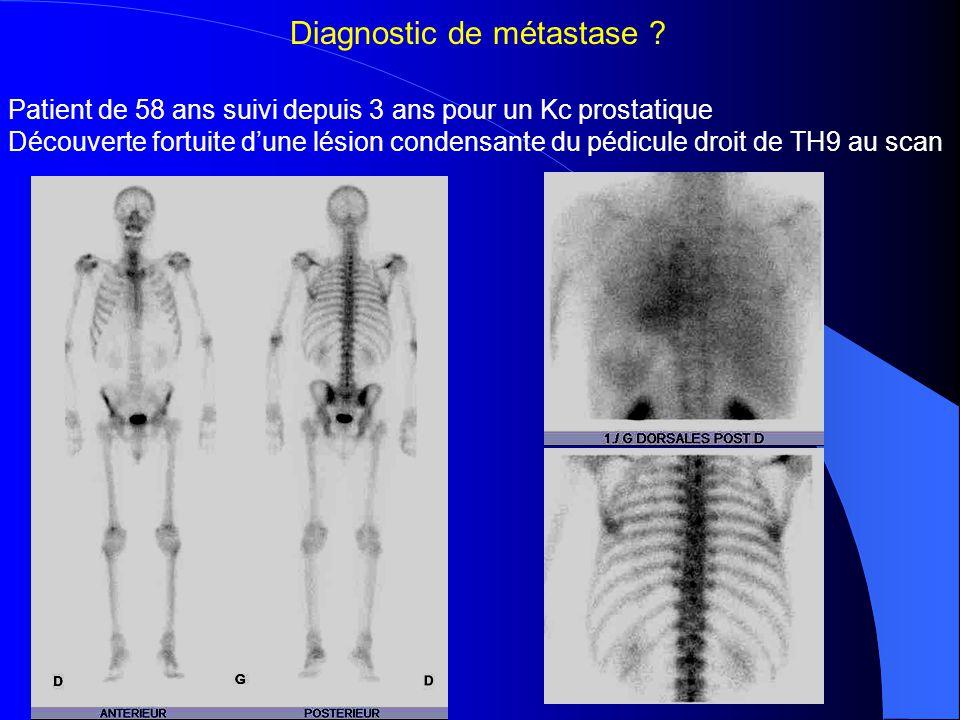 -> Pas de fixation au niveau de TH9 : lésion bénigne -> Bilan d'extension osseuse négatif