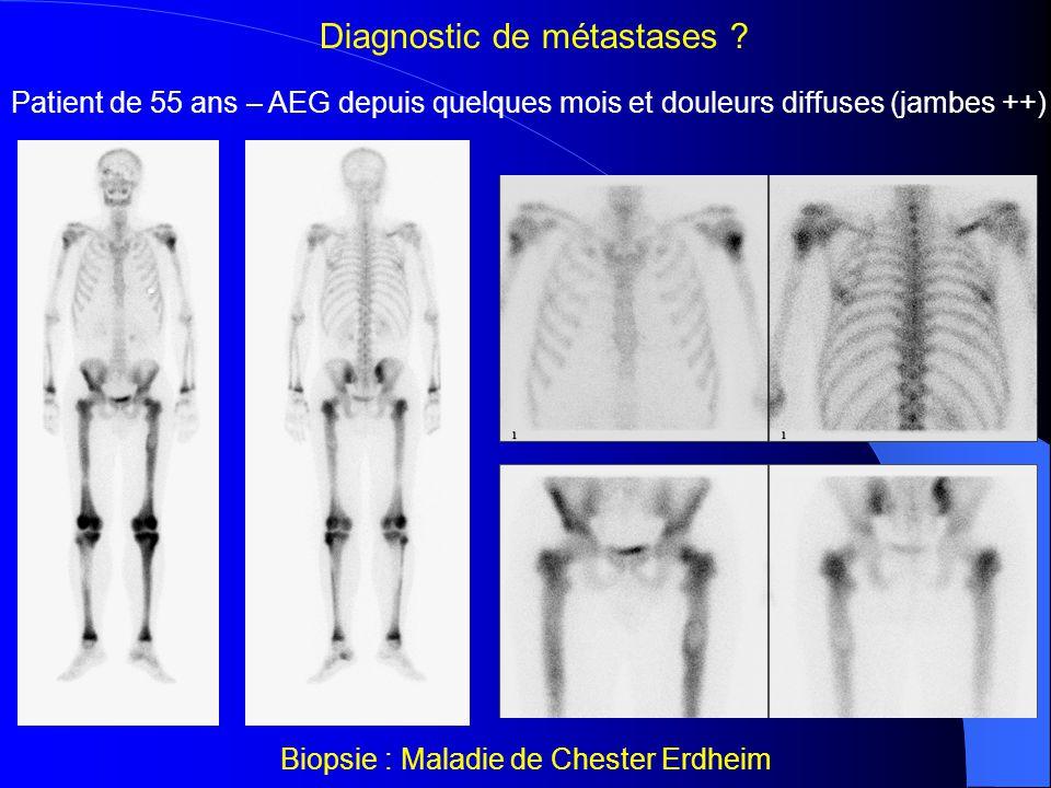Diagnostic de métastases ? HyperparathyroïdieMétas d'un carcinome bronchique