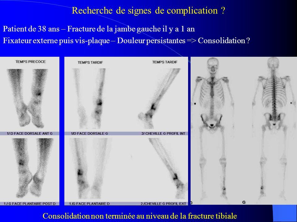 Diagnostic positif / négatif / différentiel de lésion traumatique Patient de 31 ans – Douleurs de la hanche droite depuis 2 ans IRM : suspicion d'algodystrophie