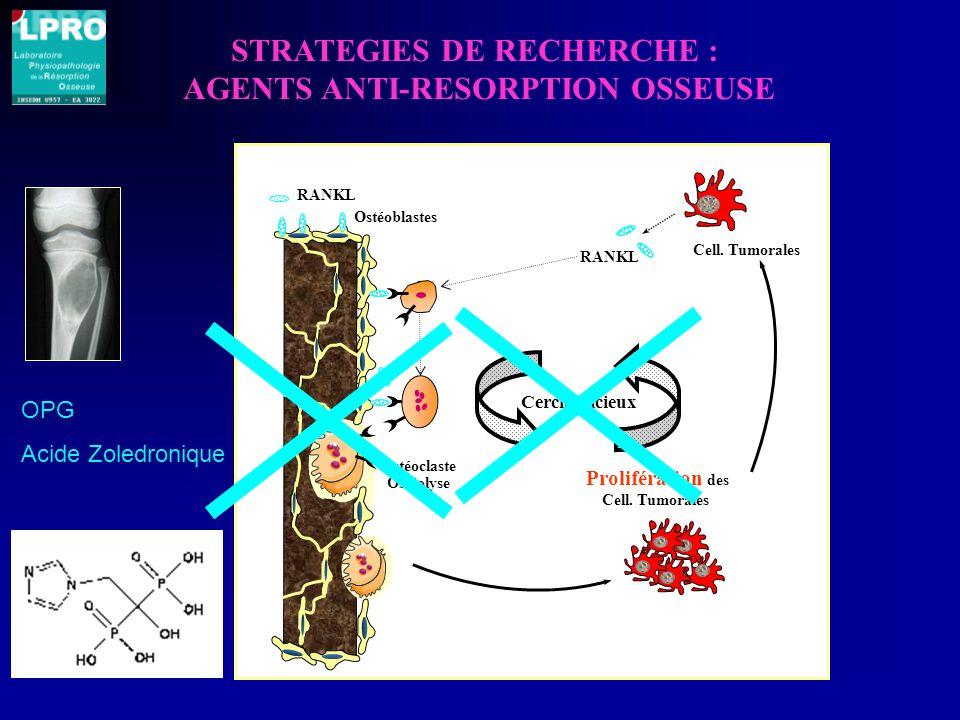 STRATEGIES DE RECHERCHE : AGENTS ANTI-RESORPTION OSSEUSE OPG Acide Zoledronique