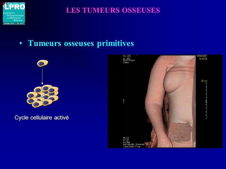 LES TUMEURS OSSEUSES Tumeurs osseuses primitives Cycle cellulaire activé