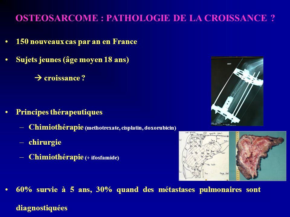 OSTEOSARCOME : PATHOLOGIE DE LA CROISSANCE .
