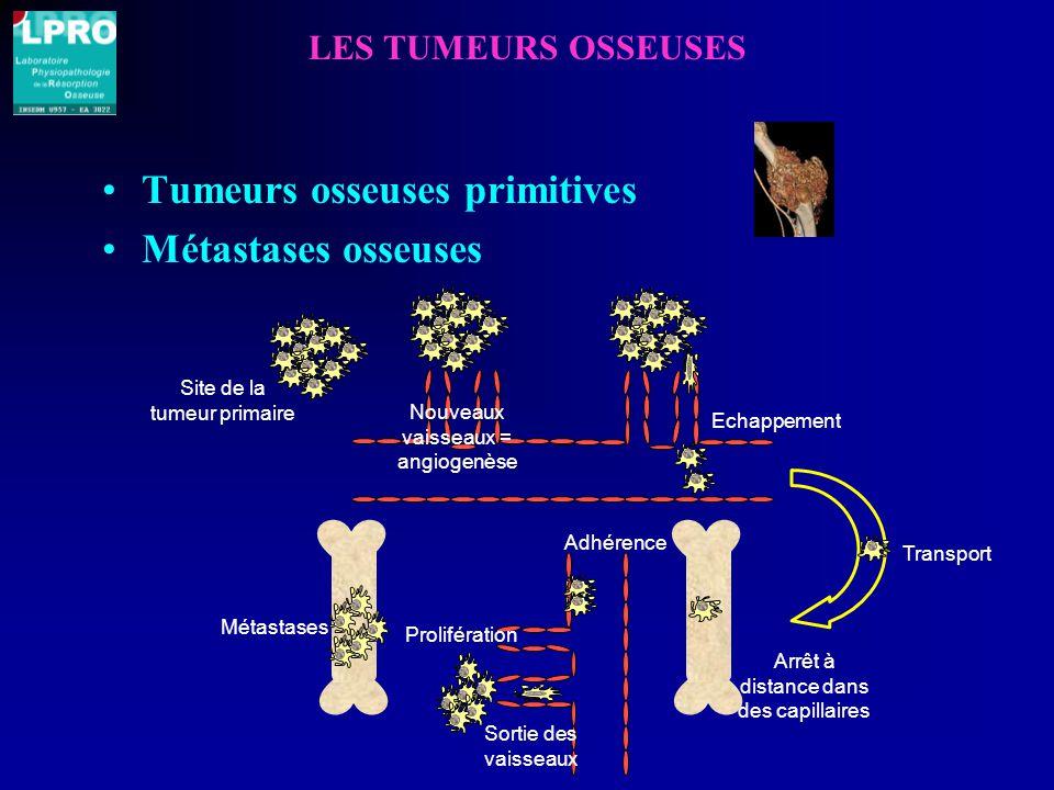 LES TUMEURS OSSEUSES Tumeurs osseuses primitives Métastases osseuses Site de la tumeur primaire Echappement Transport Arrêt à distance dans des capillaires Adhérence Métastases Sortie des vaisseaux Prolifération Nouveaux vaisseaux = angiogenèse