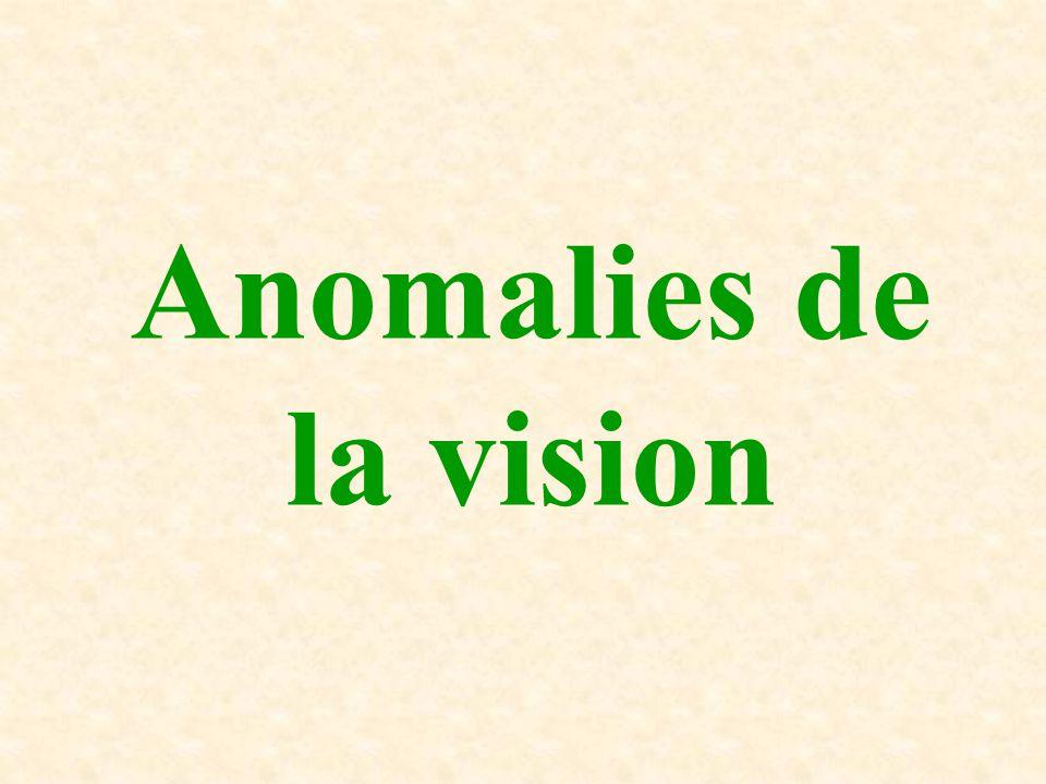 Anomalies de la vision