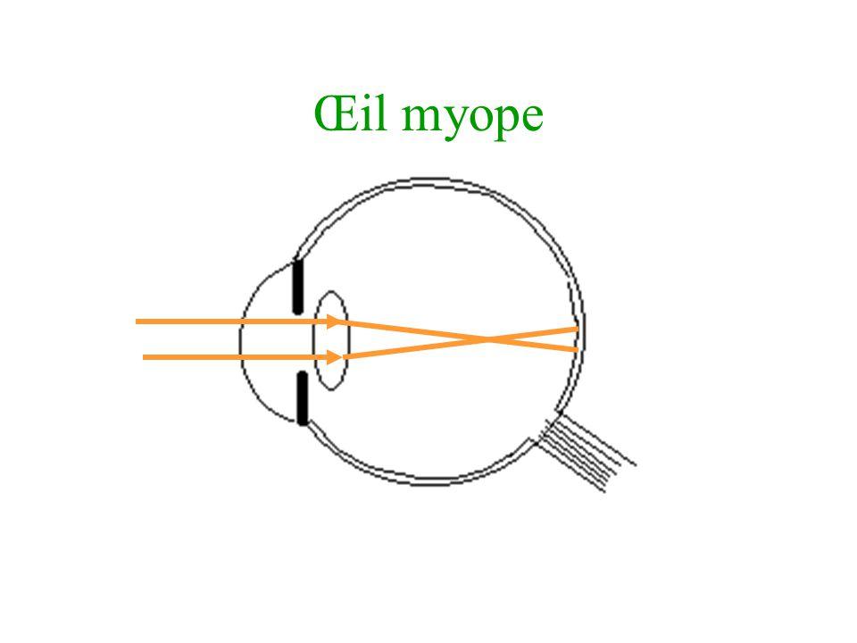 Œil myope