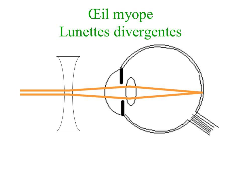 Œil myope Lunettes divergentes